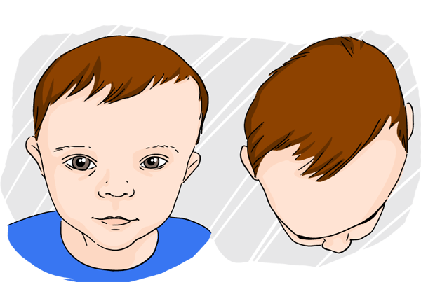 Head Care Orthopaedic Pillows For Infants Suffering